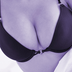 chicago breast lift-breast-deduction-in-chicago