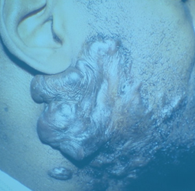 chicago-keloid-removal-dr