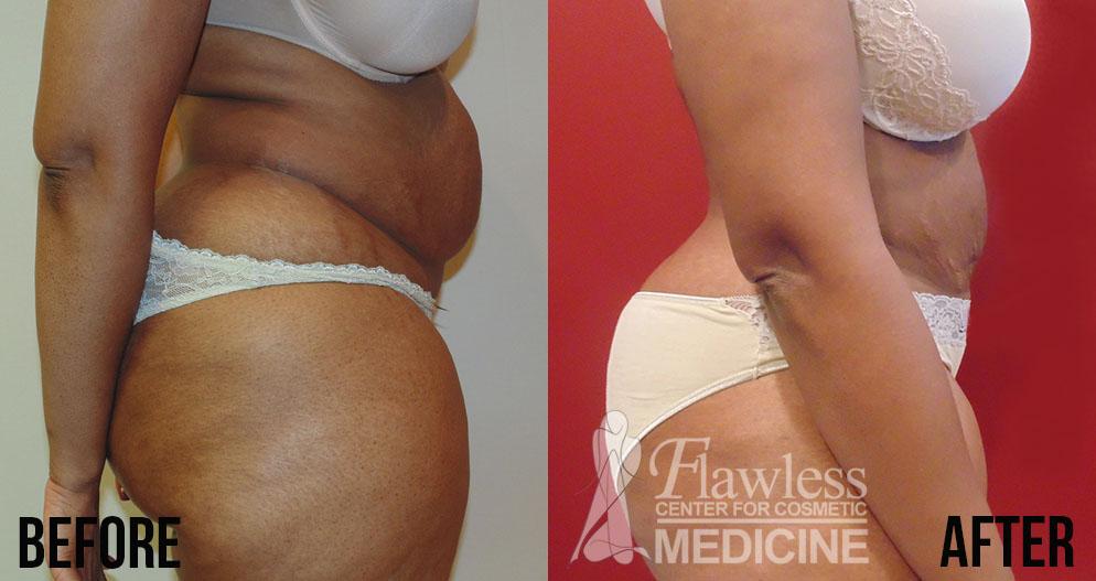 Liposuction Orland Park Orland Park Liposuction Lipo