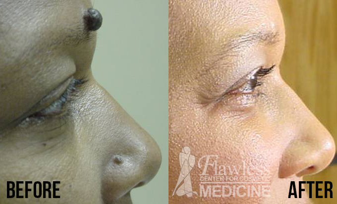 Mole removal on head